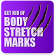 Get Rid of Body Stretch Marks Naturally by App4Life dev
