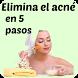Elimina el acné en poco tiempo by Marcela Mejia