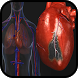 Heart Disease Treatment by Revolxa Inc