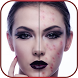 Pimple Remover & Acne Remover by Mind Apps Studio