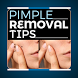 Proven Pimple Removal Tips by Apps Elite