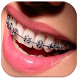 Braces Teeth Booth Pro by shini