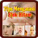 Tips Mengatasi Flek Hitam by Asdapp