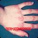 Dermatophytosis Infection