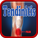 Tendinitis Disease by Droid Clinic