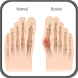 How to Get Rid of Bunions Without Surgery