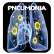 Pneumonia Disease by bedieman