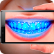 Teeth: Germ Scanner. Simulator by GemGames