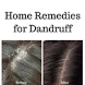 Home remedies for dandruff by Heru Technologies