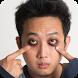 Consejos para eliminar el ojo Panda by itaQppa
