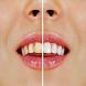 وصفات تبيض الأسنان tbyid asnan by develoapp