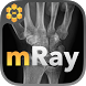 mRay - DICOM Viewer by mbits imaging GmbH
