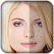 Pimple Remover-Pimple Eraser by Fast App Developer
