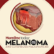 HemOnc Today Melanoma by CrowdCompass by Cvent