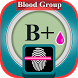 Blood Group Test Prank Xray by Foulbcone