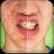 Pimple Remover by Dexati