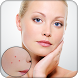 Pimple Remover : Face Maker by My App Zone