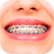 Braces Booth - Funny Stickers by Beauty Technology