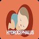 Hydrocephalus Disease by bedieman
