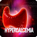 Hypercalcemia Disease by bedieman