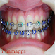 Design of Braces