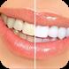 خلطات تبييض الاسنان بسرعه جديد by Talented apps
