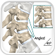 Kyphosis Disease by Droid Clinic
