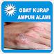Obat Kurap Ampuh Alami by rizaluye