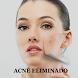Como Eliminar el Acne by AlfredoAdolfoParra
