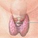 Hypothyroidism Diet by Muhhas