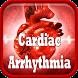 Cardiac Arrhythmia Disease by Droid Clinic