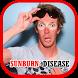 Sunburn Disease Help