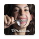 Braces - Photo Editor by FataFat App