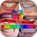 Colourful Braces Design by thiroe