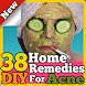 38 DIY Home Remedies For Acne by HealthSensei101