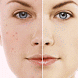 How to Get Rid of Pimples by StatesApps