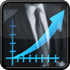 Forex Trading Strategies by Rowan Saturnin
