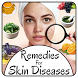 Remedies for Skin Diseases
