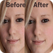 Photo Edit Blemishes - How to by Candy Smile Studio