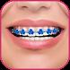 Braces Teeth Beauty photos by MedTrWork