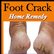 Foot Crack Home Remedy - Cracked Heels Treatment by Seema Rathod1890