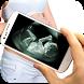 Ultrasound Scanner Prank by appohub