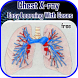 Chest X-ray Easy Learning