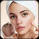 Pimple Remover : Beauty Plus