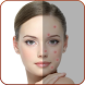Acne Remover - Pimple Remover by Makeup & Saloon