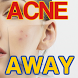 Acne Away Home Remedies Help by Nicholas Gabriel