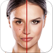 Acne Free : Pimple Remover by Appwallet Technologies