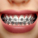 Design Of Braces by omadmad
