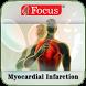 Myocardial infarction by Focus Medica India Pvt. Ltd