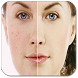 Acne Free Face by martinandoapp